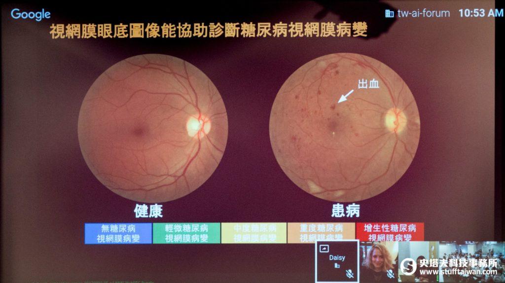糖尿病視網膜病變眼底圖像